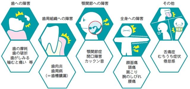 歯ぎしりや噛みしめが起こす全身への影響