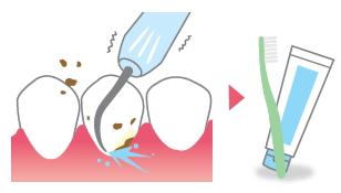 歯の表面の歯石を取り除き、歯みがきレッスン