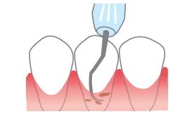 歯周ポケットの中の歯石を取り除きます