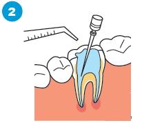 治療済みの歯の根に感染がある場合の治療の流れ