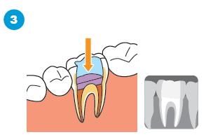 治療済みの歯の根に感染がある場合の治療の流れ3