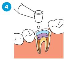 治療済みの歯の根に感染がある場合の治療の流れ4