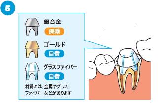 治療済みの歯の根に感染がある場合の治療の流れ5