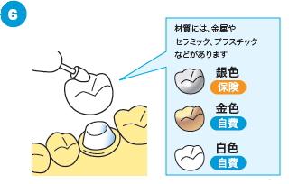 治療済みの歯の根に感染がある場合の治療の流れ6