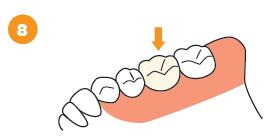 治療済みの歯の根に感染がある場合の治療の流れ8